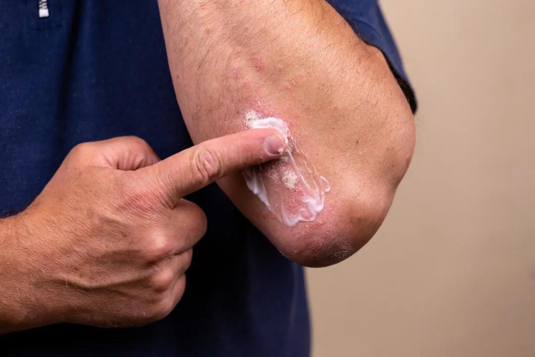 皮肤病瘙痒能不能挠?